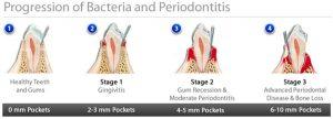 FAQ_Periodontitis